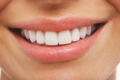 boca sorriso